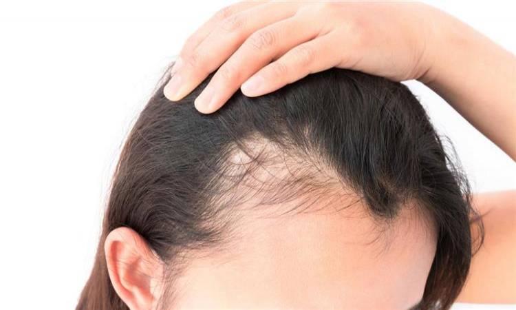 اسباب مرض الثعلبه و الطرق الطبيعيه لتحفيز نمو الشعر