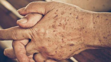 نمش الشيخوخه و اهم الوصفات الطبيعيه لتفتيح النمش
