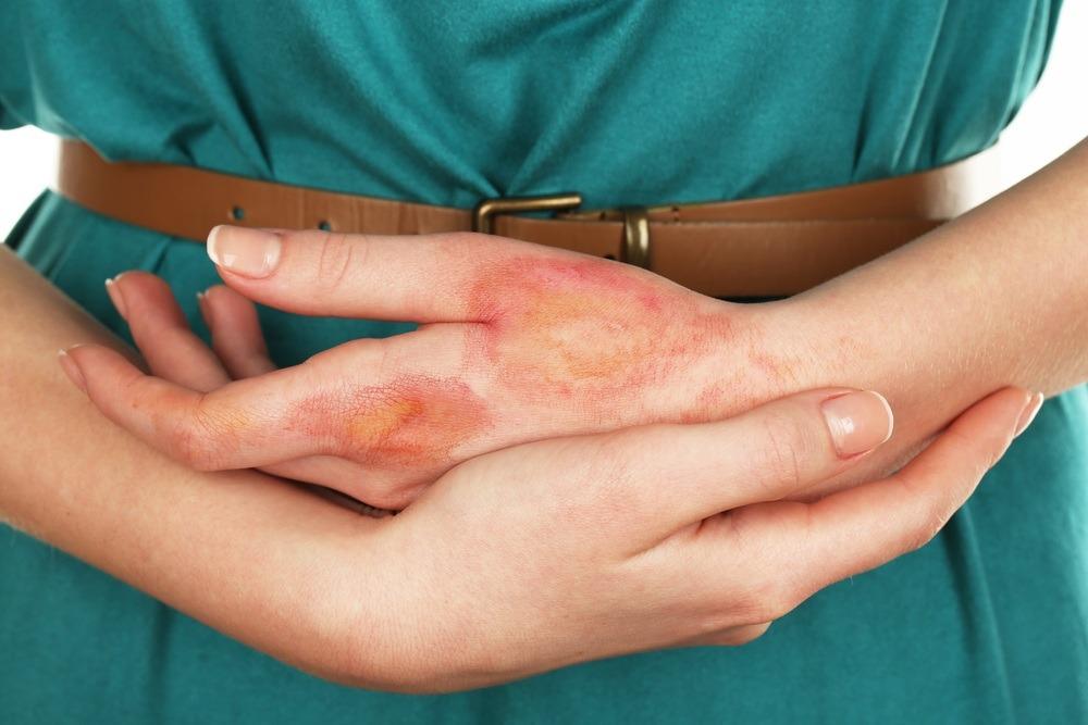 التخلص من اثار الحروق بالطرق الطبيعيةوالطبية واهم النصائح لتجنب الندبات في الجلد