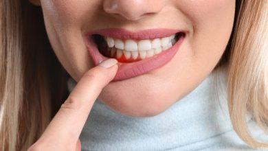 طرق طبيعية للتخلص من التهاب اللثة في الفم والعناية بصحة الفم والاسنان