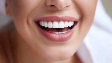 طرق تبيض الاسنان الصفراء منزليا بالوصفات الطبيعية ونصائح للحفاظ عليها