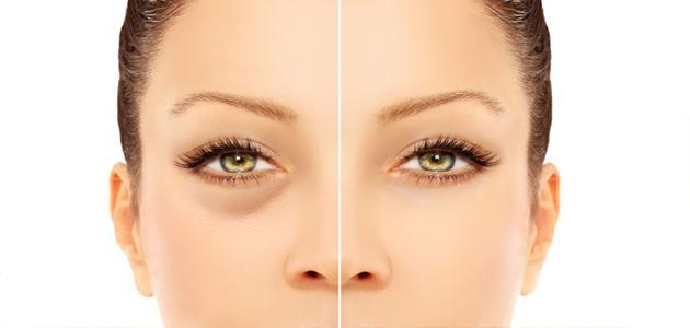 انتفاخات العين وطرق التخلص منها طبيعيا وافضل الطرق الطبيعية لعلاجها