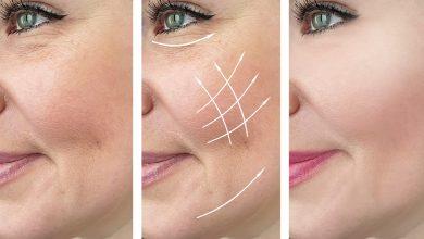التجاعيد حول الفم كيفية التخلص منها وطرق التغلب عليها ونصائح لتجنبها