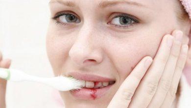 علاج التهاب اللثه فى الفم و اهم النصائح للوقايه من الاصابه به