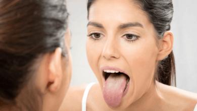 نصائح للتخلص من جفاف الفم واهم اسبابه الافراط في التدخين