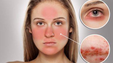 الامراض الجلدية الاكثر شيوعا في فصل الصيف وافضل النصائح للتخلص منها