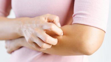 طرق علاج الجرب وافضل الادوية للتخلص نهائيا من الجرب والحكة الجلدية