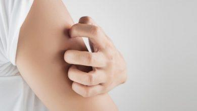 التخلص من قرص الناموس بطرق طبيعية منزلية وكيفية الوقاية من لدغات الناموس