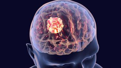 اعراض ورم المخ وكيفية تشخيص المرض وطرق التعامل معه